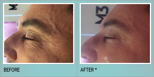 , Coolifting Treatment in Philadelphia, PA