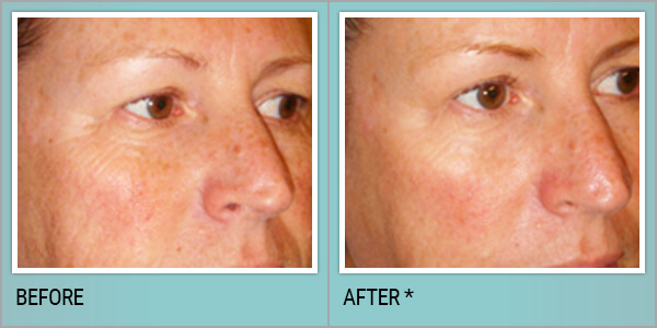 , DermaSweep Treatment in Philadelphia, PA