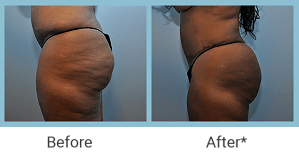 Fat Transfer in Philadelphia, PA, Before After