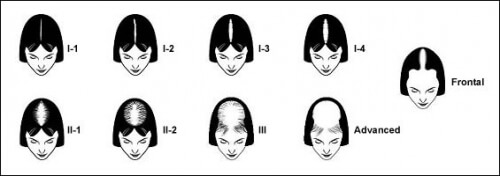 Common Patterns of Hair Loss in Women