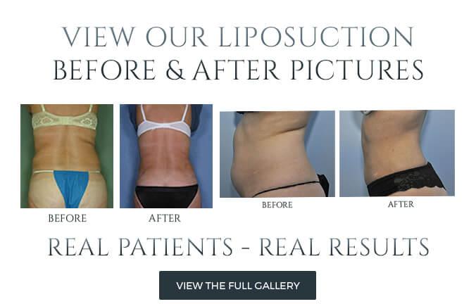 Liposuction in Philadelphia, PA Before After
