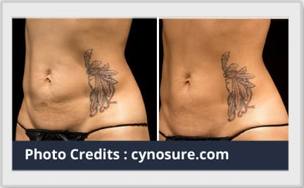 liposuction before after image 1