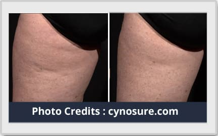 liposuction before after image 2