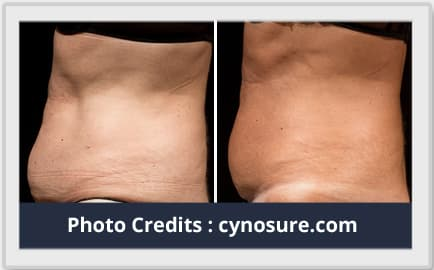 liposuction before after image 3