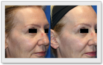 Tempsure Envi before after image 3